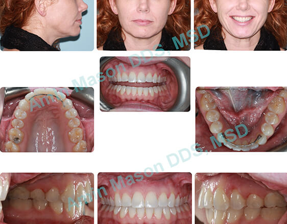 Woman's perfected smile following self-litigating braces