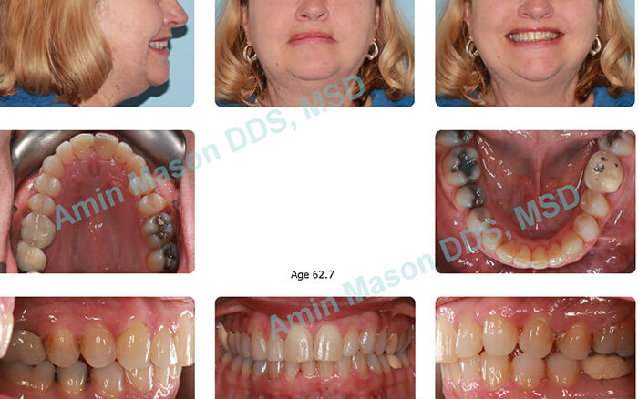 Older woman with perfectly aligned teeth after tretment