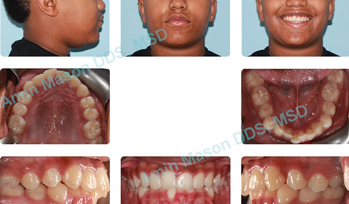 Woman's smile before orthodontic treatment