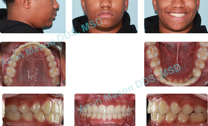 Woman's smile following orthodontic treatment