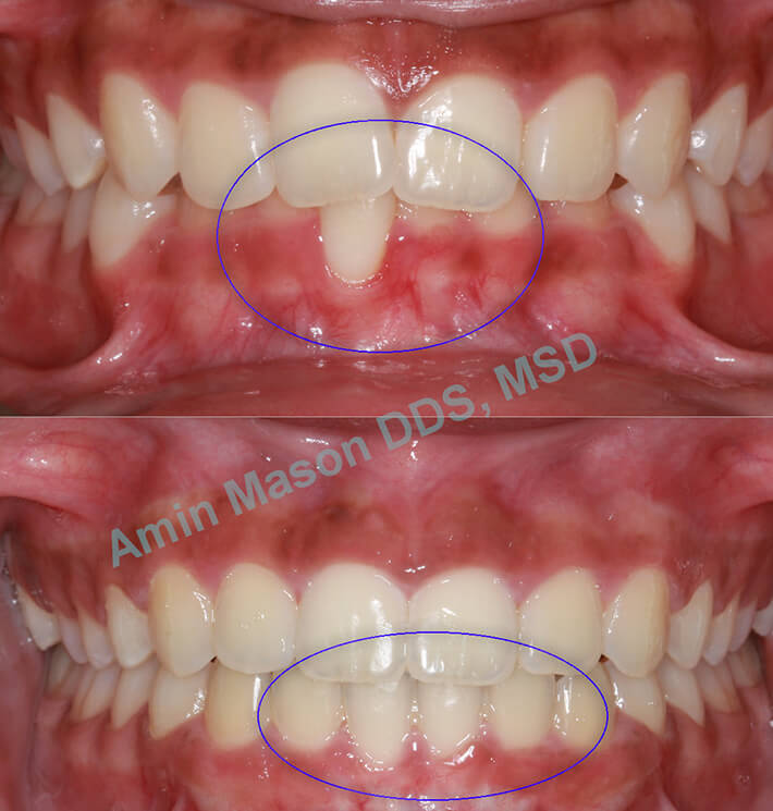 Before and after closeup of woman's smile