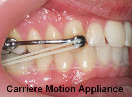 Image of smile with Carriere motion appliance