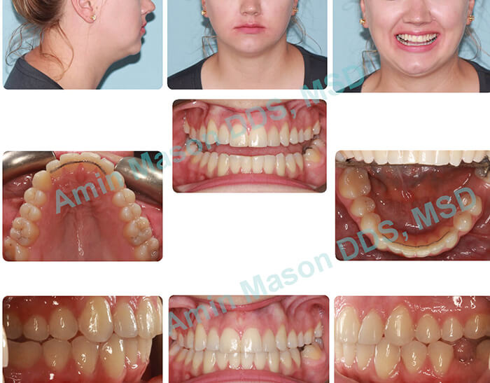 Woman's smile after Invisalign orthodontic treatment
