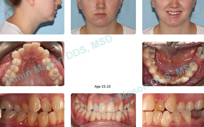 Before images of young woman with severe crossbite