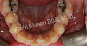 Inside bottom teeth with severe crowding