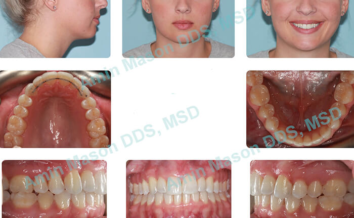 Woman following Invisalign and expander treatment
