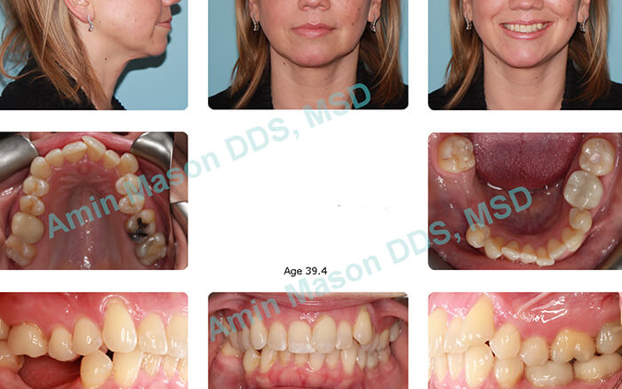 Woman's smile with missing teeth large gaps and uneven spacing