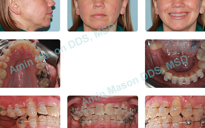 Woman's smile during clear braces treatment