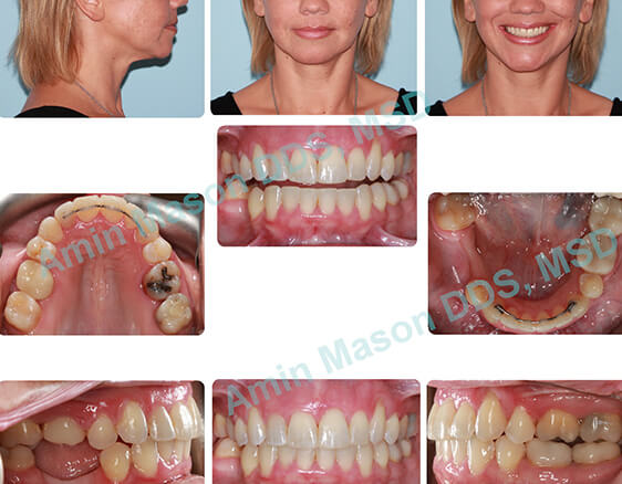 Woman's smile after orthodontic treatment and tooth replacement