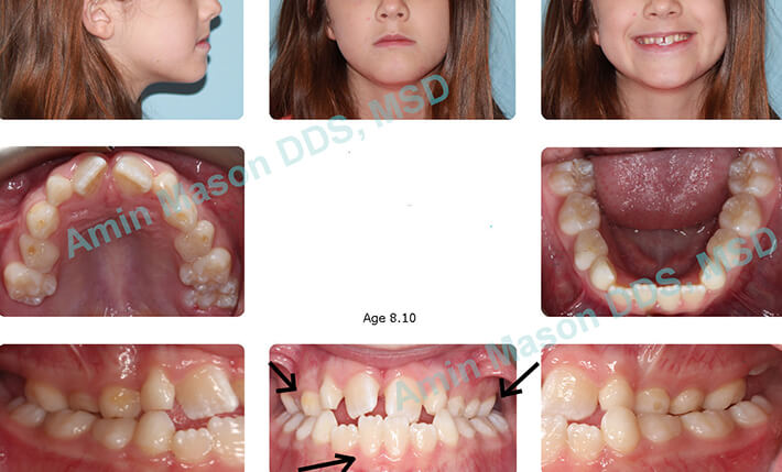 Preteen girl with crooked teeth