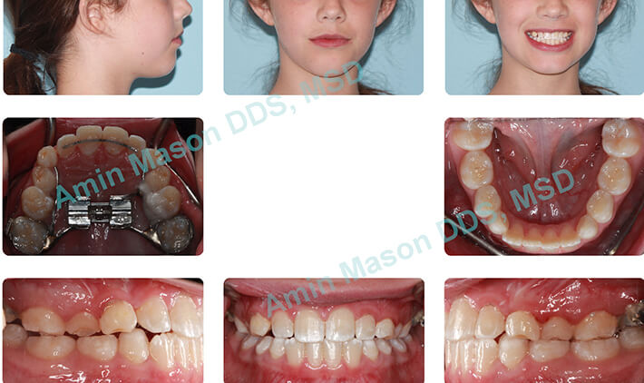 Preteen girl receiving early intervention orthodontics