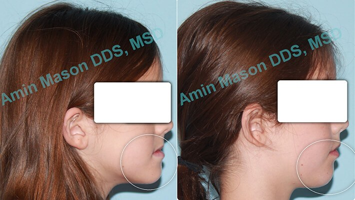 Change in facial shape following early intervention orthodontics