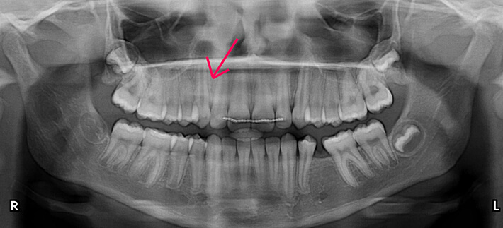 Panoramic dental x-ray showing smile following treatment