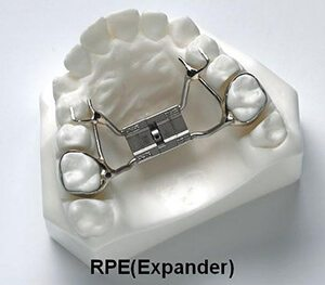 Models of teeth with palatal expanders