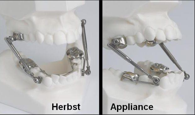 Teeth models with herbst appliance