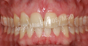 Properly positioned teeth after Invsialign