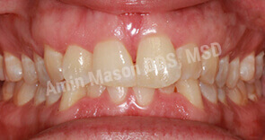 Improperly positioned teeth before Invisalign