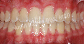 Evenly spaced properly aligned teeth after Invisalign