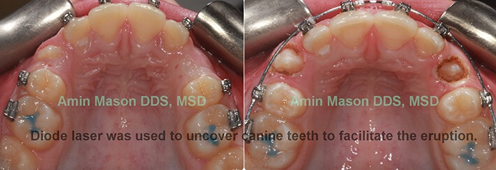Before and after soft tissue laser uncovering teeth