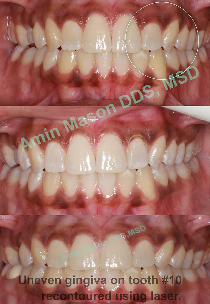 Smile before and after gingival recontouring