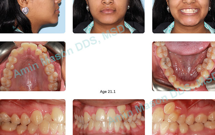 Woman before treatment with self-litigating braces