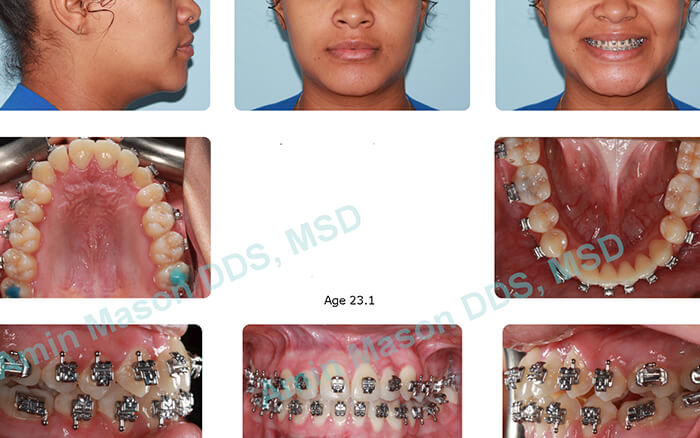 Woman during self-litigating braces