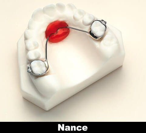 Model of teeth with Nance holding arch