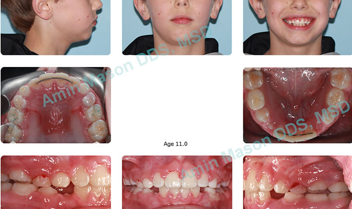 Young boy during treatment for open bite