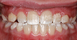 Closed bite after Phase 1 orthodontics