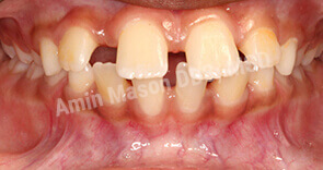 Protruding teeth with large gaps
