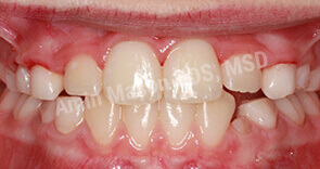 Overbite and spacing corrected with Phase 1 orthodontics