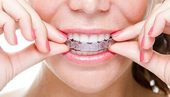 closeup of woman placing Invisalign tray