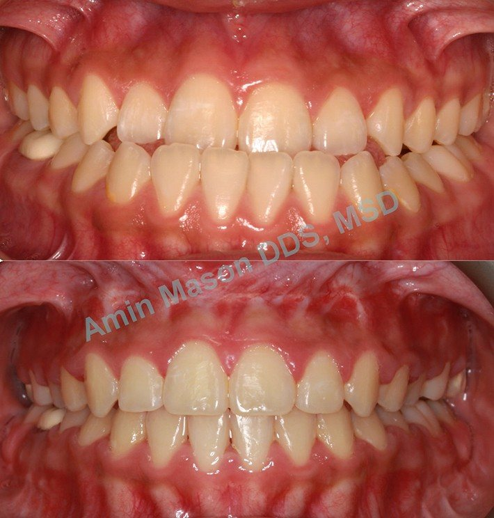 Before and after underbite closeup of teeth