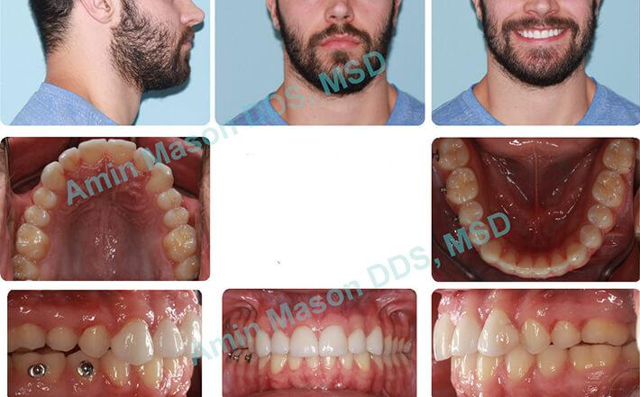 Man's teeth following TADs treatment to even out jaw line