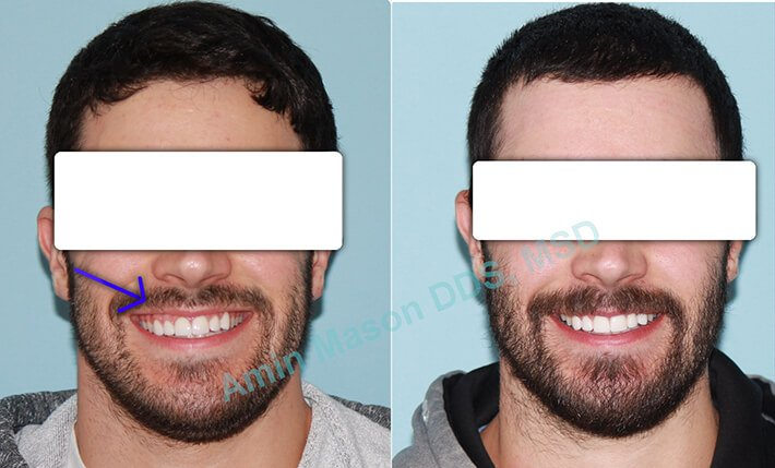 Before and after photos of man following TADs treatment