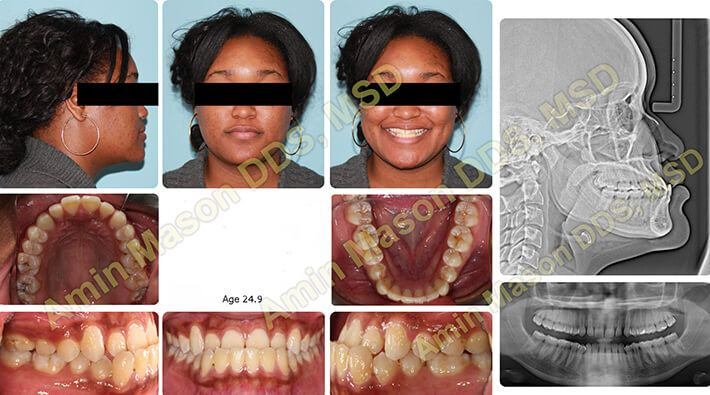 Woman with severe underbite