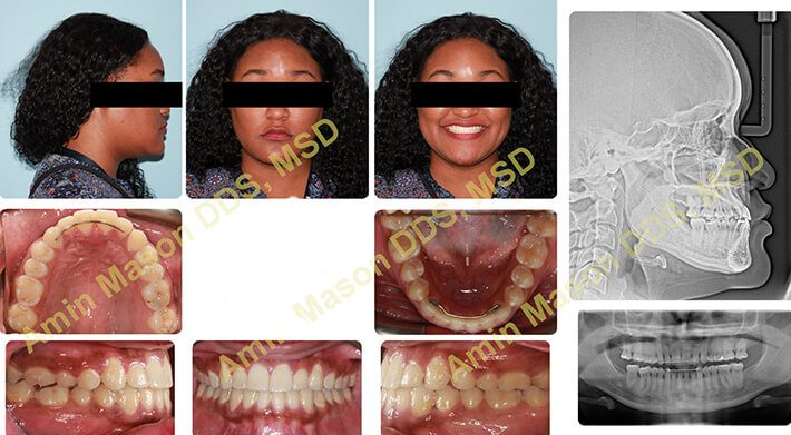 Woman following skeletal treatment for underbite