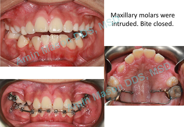 Collage of open bite treatment with TADs