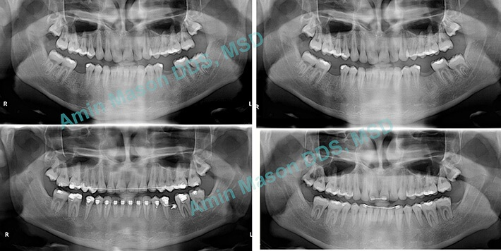 Collage of x-rays before and after TADS treatment to fill in missing teeth