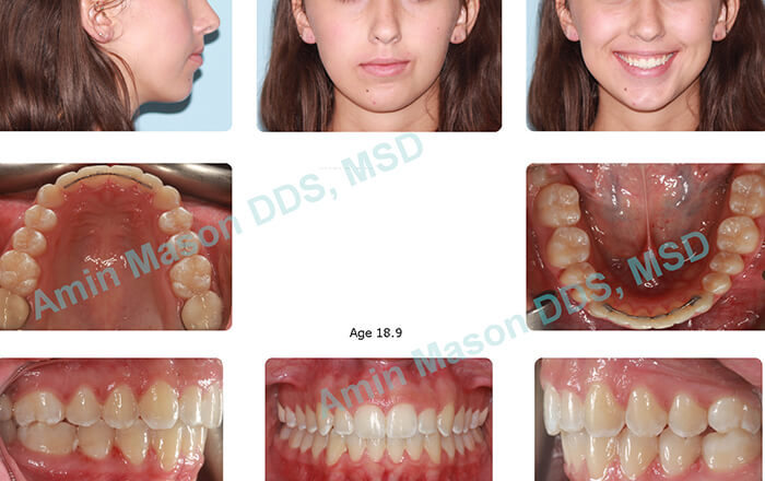 Collage of photos after treatment with Invisalign teen