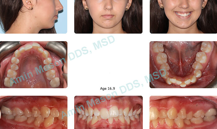 Collage of photos of girl with overbite and crowding