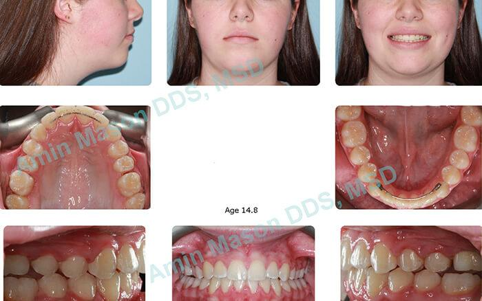 Young woman's smile after traditional braces