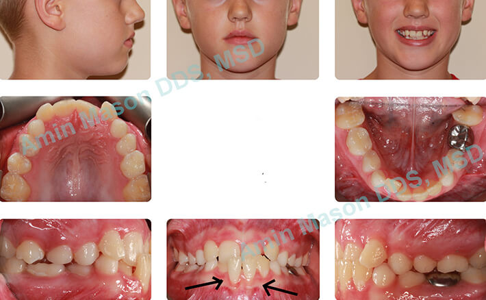 Young girl with severe underbite