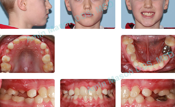 Young girl following correction of underbite