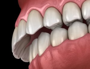 Illustration of a bad bite that requires orthodontic treatment