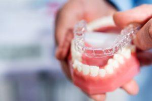 Dental model and aligner illustrating Invisalign treatment process